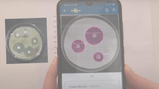 компьютерное зрение в медицине